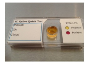this CLO test kit contains phenol red - it is yellow when acid and red when alkaline