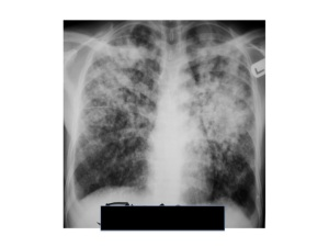 pulmonary TB usually affects the upper part of the lungs