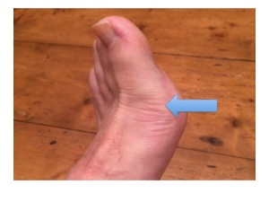 This is the first metatarsophalangeal joint where 50% of first episodes of gout occur